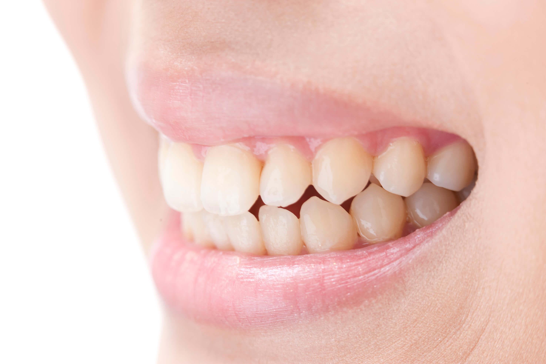 あなたの知らないうちに歯周病は進行していきます