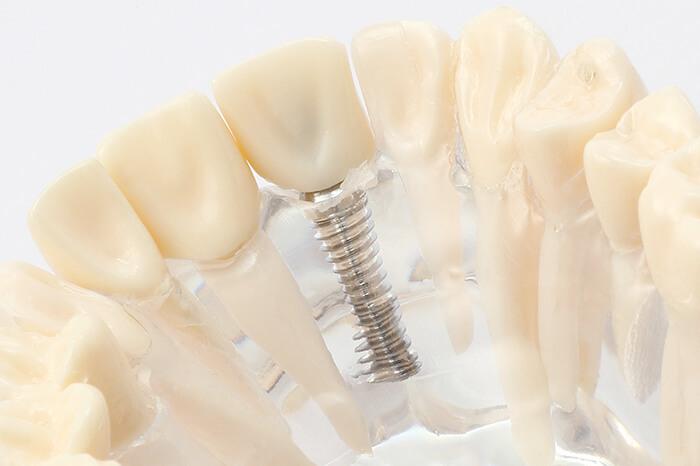 大切な自分の歯、失ってしまったら・・・第2の永久歯「インプラント」