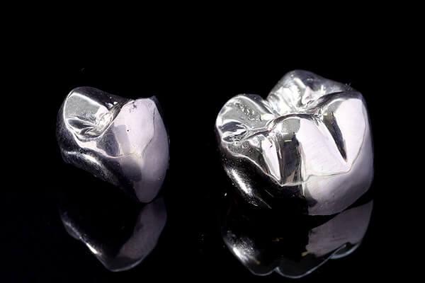 銀歯について(金銀パラジウム合金)