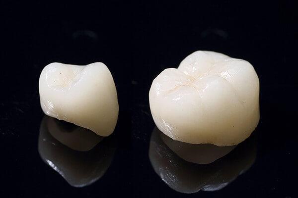 銀歯とセラミックあなたはどちらを選びますか?